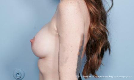 Philadelphia Breast Augmentation 8649 -  After Image 5