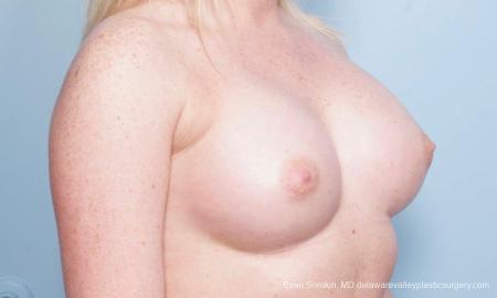 Philadelphia Breast Augmentation 8778 -  After Image 2