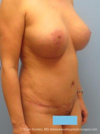 Philadelphia Mommy Makeover 8673 -  After Image 2