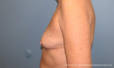Philadelphia Breast Augmentation 9549 - Before and After Image 5