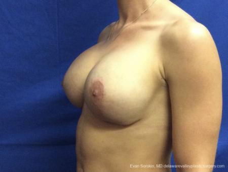 Breast Lift And Augmentation: Patient 42 - After Image 3