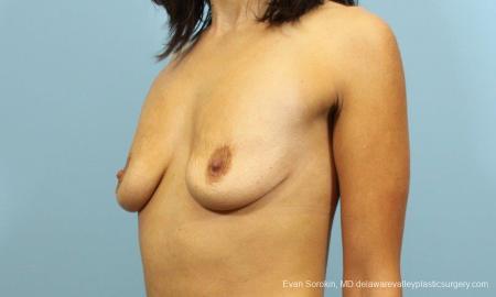 Philadelphia Breast Augmentation 9205 - Before Image 4