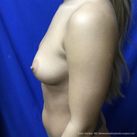 Breast Augmentation: Patient 167 - Before and After Image 5