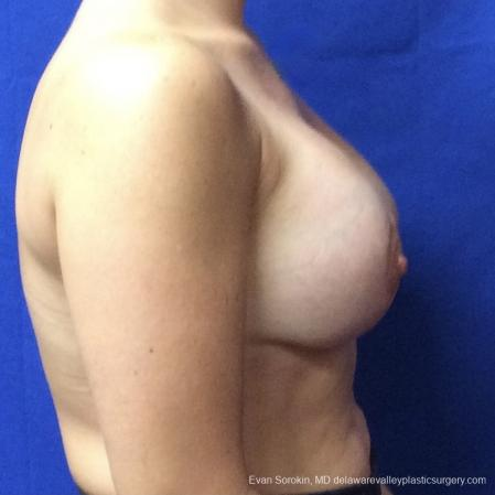 Breast Lift And Augmentation: Patient 3 - After Image 3