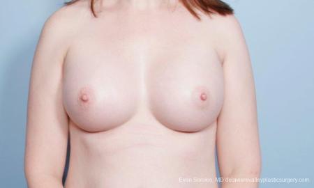 Philadelphia Breast Augmentation 9418 -  After Image 1