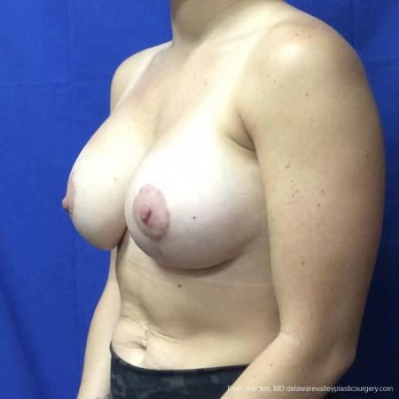 Breast Lift And Augmentation: Patient 3 - After Image 4