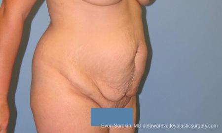 Philadelphia Abdominoplasty 10122 - Before Image 2