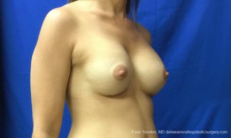 Philadelphia Breast Augmentation 12519 -  After Image 2