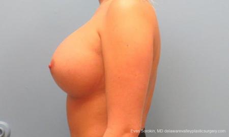 Philadelphia Breast Augmentation 9394 -  After Image 5
