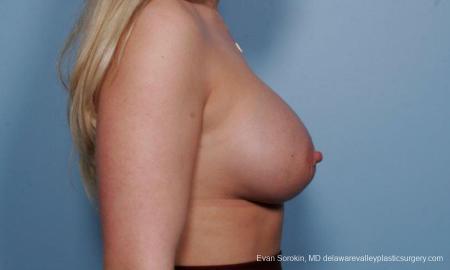 Philadelphia Breast Augmentation 9372 -  After Image 3