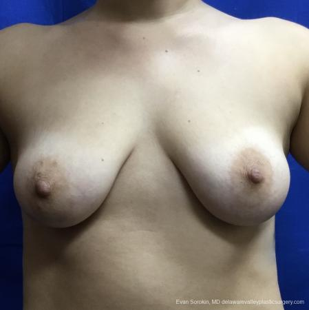 Breast Lift And Augmentation: Patient 40 - Before Image 1