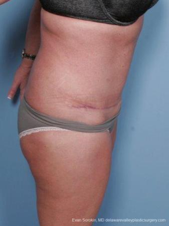 Philadelphia Abdominoplasty 9463 -  After Image 3
