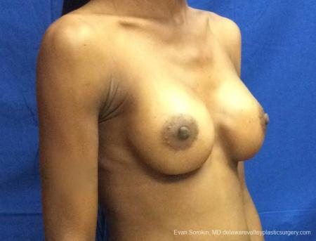 Philadelphia Breast Augmentation 13072 -  After 2