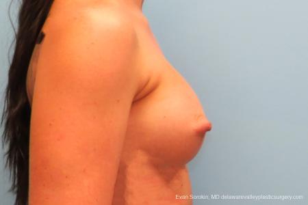 Philadelphia Breast Augmentation 8664 -  After Image 3