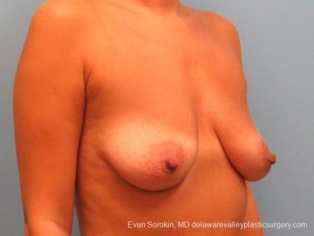 Philadelphia Breast Lift and Augmentation 10247 - Before Image 2
