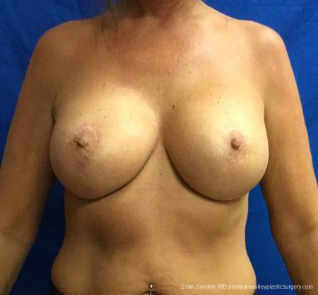 Philadelphia Breast Lift and Augmentation 13068 -  After Image 1