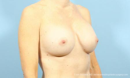 Philadelphia Breast Augmentation 9456 - Before Image 2
