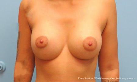Philadelphia Breast Augmentation 9382 -  After Image 1