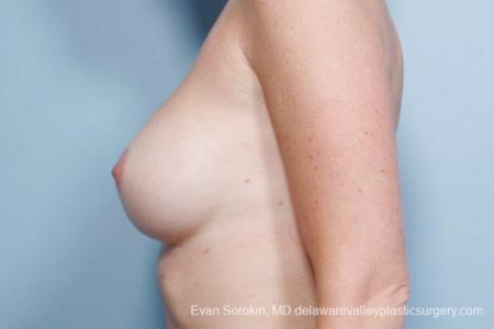 Philadelphia Breast Augmentation 9402 - Before and After Image 5