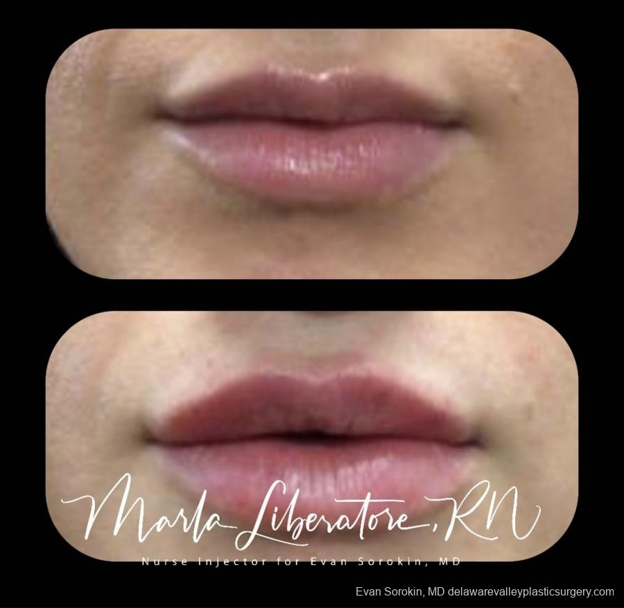 Lip Augmentation: Patient 23 - Before and After Image 1