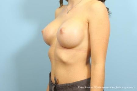 Philadelphia Breast Augmentation 8666 -  After Image 3