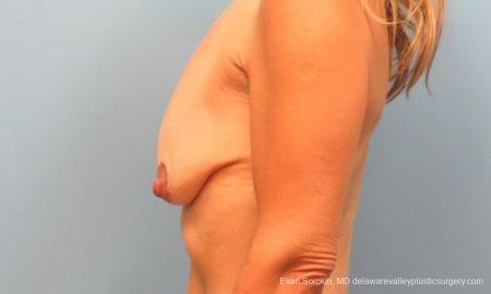 Philadelphia Breast Lift and Augmentation 9485 - Before and After Image 5