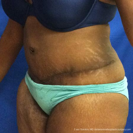Philadelphia Abdominoplasty 10817 -  After Image 4