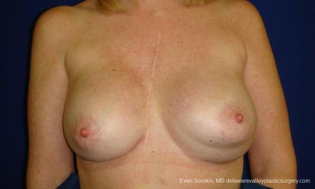 Philadelphia Breast Augmentation 9457 - Before Image