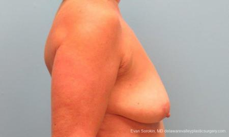 Philadelphia Breast Lift and Augmentation 9598 - Before Image 3
