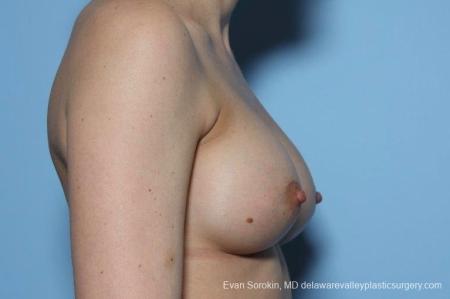 Philadelphia Breast Augmentation 8763 -  After Image 4