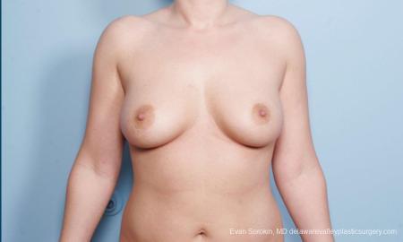 Philadelphia Breast Augmentation 9172 - Before Image 1