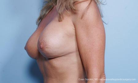 Philadelphia Breast Lift and Augmentation 9453 -  After Image 3