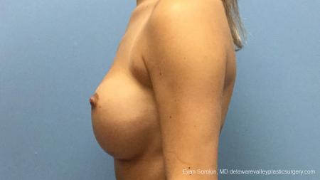 Philadelphia Breast Augmentation 13177 - Before and After Image 5