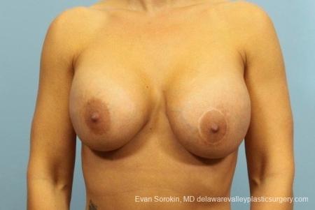 Philadelphia Breast Augmentation 8709 - Before Image