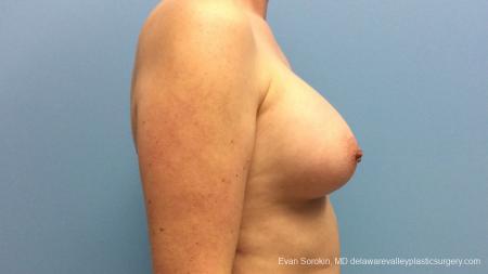 Philadelphia Breast Augmentation 13181 -  After Image 3