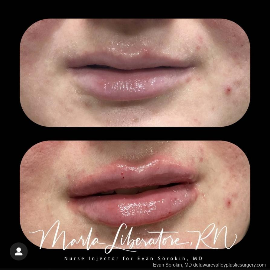 Lip Augmentation: Patient 1 - Before and After Image