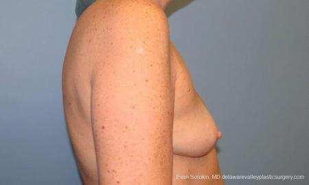 Philadelphia Breast Augmentation 9600 - Before Image 3