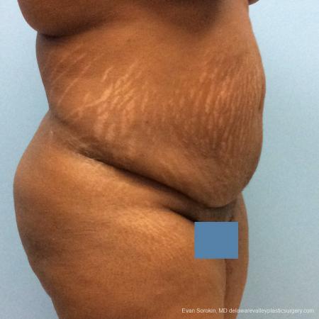 Philadelphia Abdominoplasty 10817 - Before Image 2