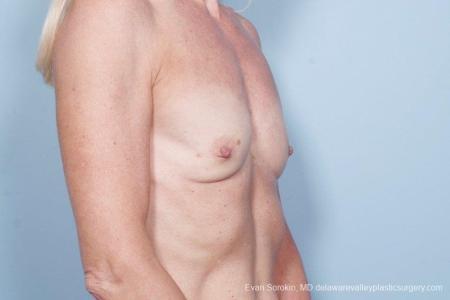 Philadelphia Breast Augmentation 8770 - Before Image 2
