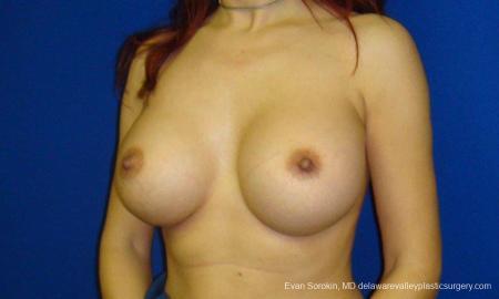 Philadelphia Breast Augmentation 9294 -  After Image 2