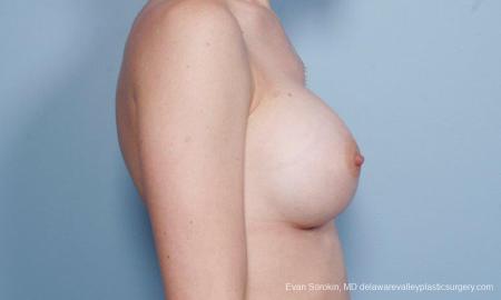 Philadelphia Breast Augmentation 9170 -  After Image 3