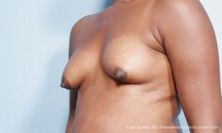 Philadelphia Breast Lift and Augmentation 9427 - Before Image 4