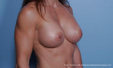 Philadelphia Breast Augmentation 9455 -  After Image 2