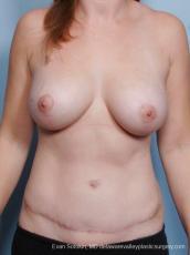Philadelphia Mommy Makeover 8679 - After Image