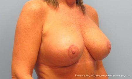 Philadelphia Breast Lift and Augmentation 9398 -  After Image 2