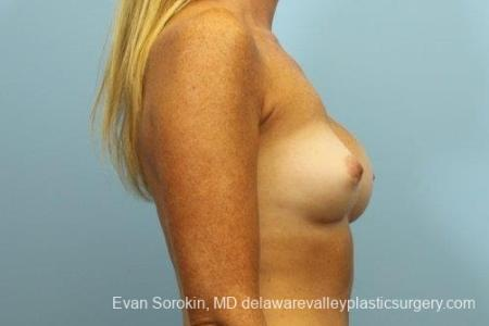 Philadelphia Breast Augmentation 8654 - Before Image 4
