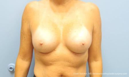 Philadelphia Breast Augmentation 9549 -  After Image 1