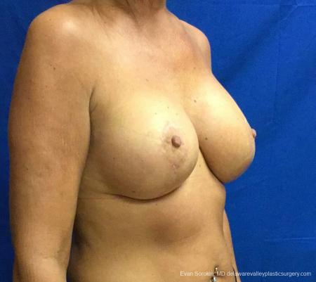 Philadelphia Breast Lift and Augmentation 13068 -  After Image 2
