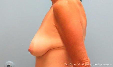 Philadelphia Breast Lift and Augmentation 9486 - Before and After Image 5