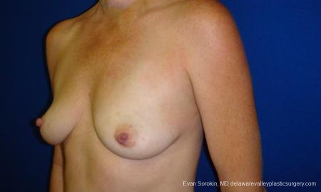 Philadelphia Breast Augmentation 9295 - Before Image 4